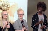 Gêmeas albinas fazem sucesso no mundo fashion
