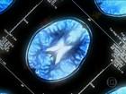 Terapia experimental contra Alzheimer mostra resultado promissor