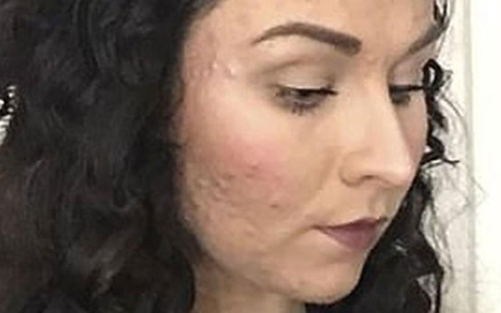 Judith reclama que nenhuma maquiagem era capaz de cobrir suas espinhas (Foto: Judith Donald)