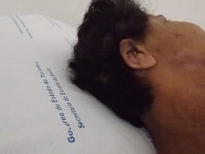 Uma das orelhas machucadas pelas mordidas, não pode ser reconstruída (Foto: Marcelo Gris/GuaraíNotícias)