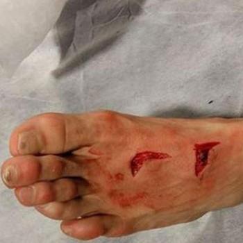Héctor Herrera pé cortado (Foto: Reprodução / Twitter)