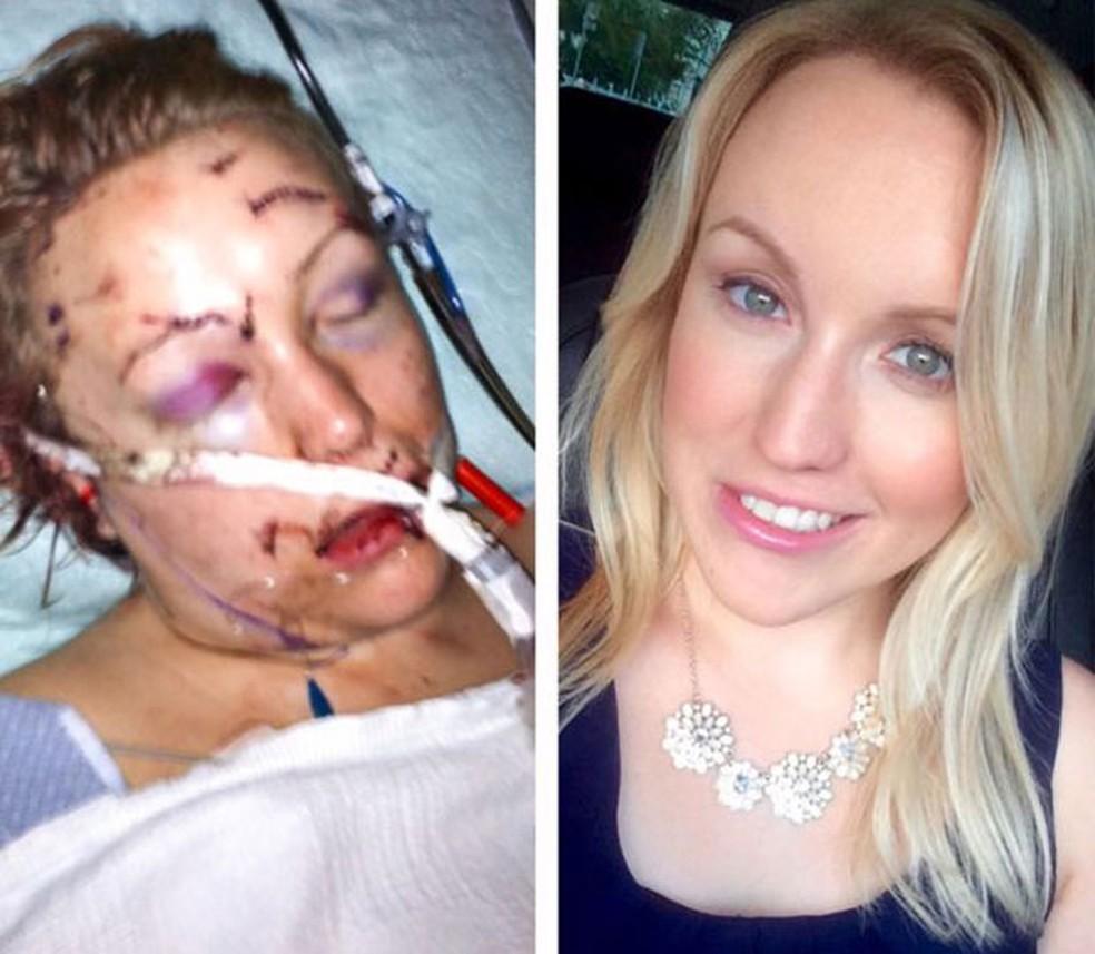 Melissa ficou muito machucada após o ataque e percorreu um longo caminho até se recuperar (Foto: Cortesia de Melissa Dohme)