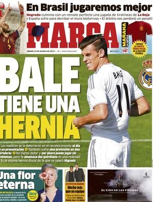 Capa do Marca diz que Bale tem hérnia de disco (Foto: Reprodução)