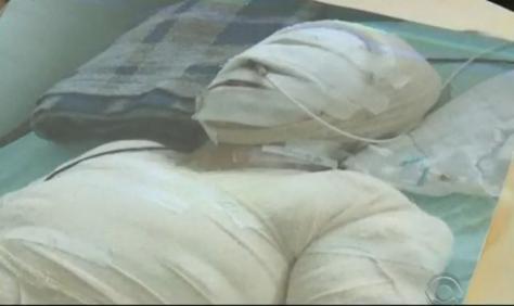 Maria teve 40% do corpo queimado e está há mais de 3 meses internada (Foto: Reprodução/RBS TV)