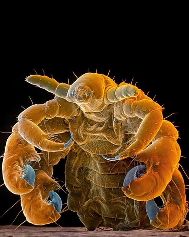 O piolho-caranguejo infesta os seres humanos e se alimenta exclusivamente de sangue. Também é conhecido por piolho-da-púbis, por conta da região em que costuma se hospedar (Foto: SPL/Barcroft Media /Sinclair Stammers)