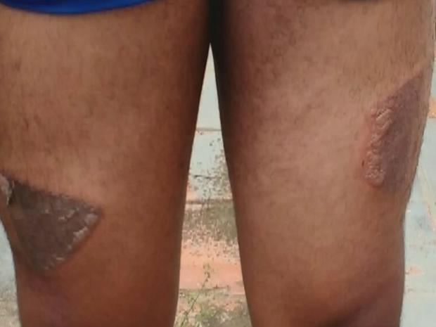 Jovem diz ter sido queimado com ferro quente (Foto: Reprodução/TV TEM)