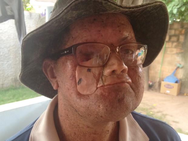 Deidi Freire de Andrade luta contra a doença desde os sete anos de idade (Foto: Fernanda Borges/G1)