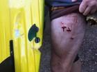 Tubarão ataca surfista em praia no leste da Austrália