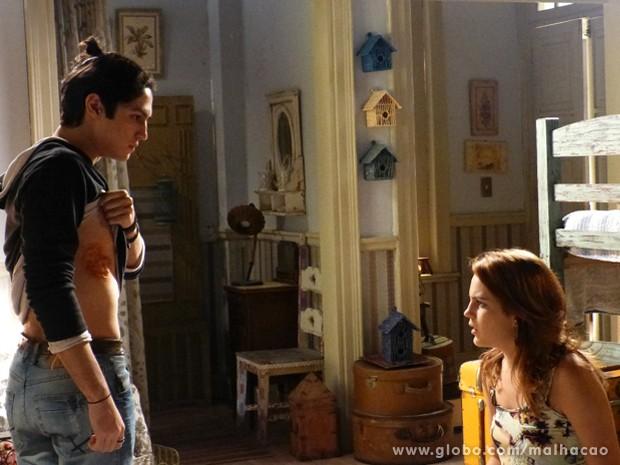 OMG! Antônio mostra ferida para Anita, insinuando que foi Hernandez que lhe queimou.