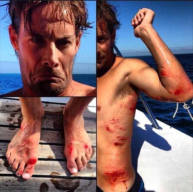 travis logie acidente surfe (Foto: Reprodução / Instagram)