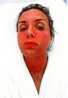 Renata Banhara faz tratamento estético polêmico: 'Beleza dói'
