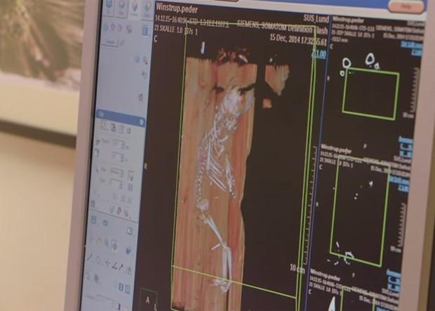Tomografia computadorizada revelou a presença de um feto no fundo do caixão do bispo Peder Winstrup, embaixo de seus pés (Foto: Reprodução/YouTube/LundUniversity)