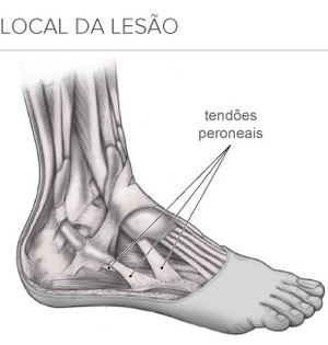 info lesão Neymar (Foto: infoesporte)