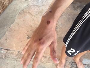 Dois jovens ficaram feridos no atropelamento (Foto: Murilo Zara/TV Fronteira)