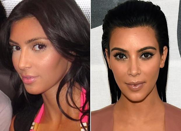 Kim Kardashian - Antes e Depois (Foto: Instagram / Reprodução - Rick Diamond/ Getty Images/ AFP)
