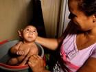 Brasil tem 138 mil casos prováveis de zika, diz Ministério da Saúde