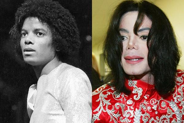 Michael Jackson talvez seja um dos exemplos mais emblemáticos entre os famosos com problemas com cirurgias plásticas. O cantor foi para a mesa de cirurgia pela primeira vez em 1979, quando quebrou o nariz durante um show. Ele acabou repetindo a dose várias vezes, tornando-se irreconhecível com o passar dos anos. Após sua morte, em 2009, a mãe de Jackson afirmou que o filho era viciado em cirurgias plásticas. (Foto: Getty Images)