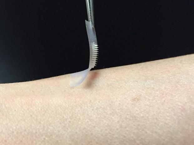 O pequeno adesivo de insulina foi desenvolvido por cientistas de universidade dos Estados Unidos (Foto: Divulgação/PNAS)