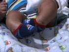 Pais buscam tratamento para bebê que nasceu com os pés tortos, em GO
