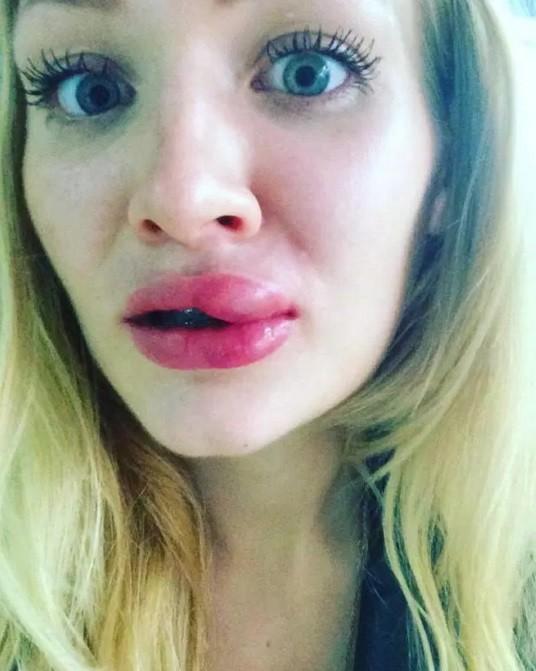 Lábio superior deformado de Amelia