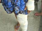 'Estou aterrorizada', diz jovem agredida a martelada e golpes de faca