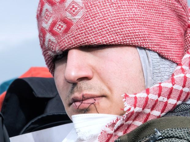 Imigrante iraniano com os lábios costurados protesta contra o desmonte parcial do campos de Calais, na França (Foto: Philippe Huguen/AFP)