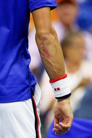 Djokovic braço ralado na final US Open (Foto: Getty Images)