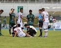 Com suspeita de lesão, Renan Teixeira faz exames, e diagnóstico sai na terça