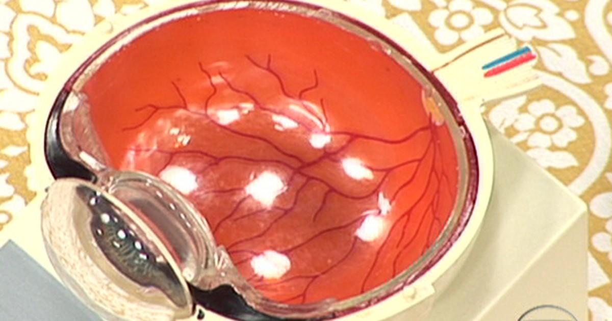 b9229891a324e Bem Estar - Dor de cabeça e sensibilidade à luz podem indicar problemas de  visão