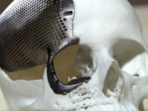 Prótese de titânio foi desenvolvida no Brasil, na Unicamp, em Campinas (Foto: Reprodução / EPTV)
