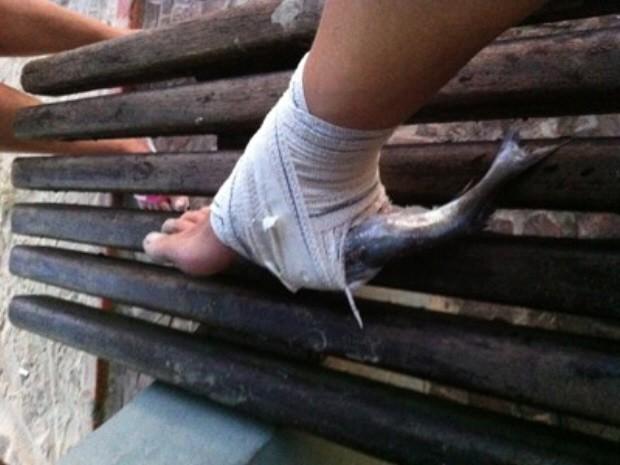 Banhista ficou com um peixe preso no pé (Foto: Arquivo Pessoal / Octavia Leme)