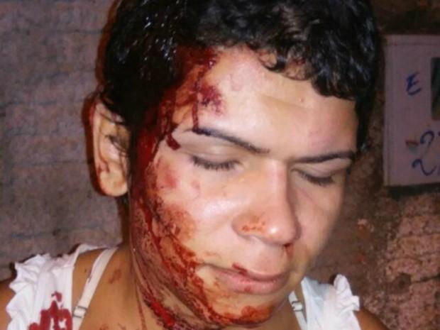 Microempreendedora denuncia ter sido agredida por namorado (Foto: Arquivo pessoal)
