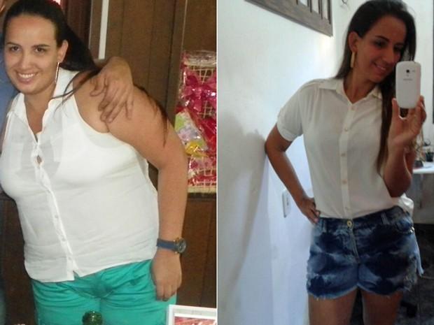 Como é possível perder o peso depois da Cesariana de entrega