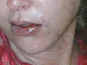 Vítima teve vários ferimentos no rosto (Foto: Reprodução / TV TEM)
