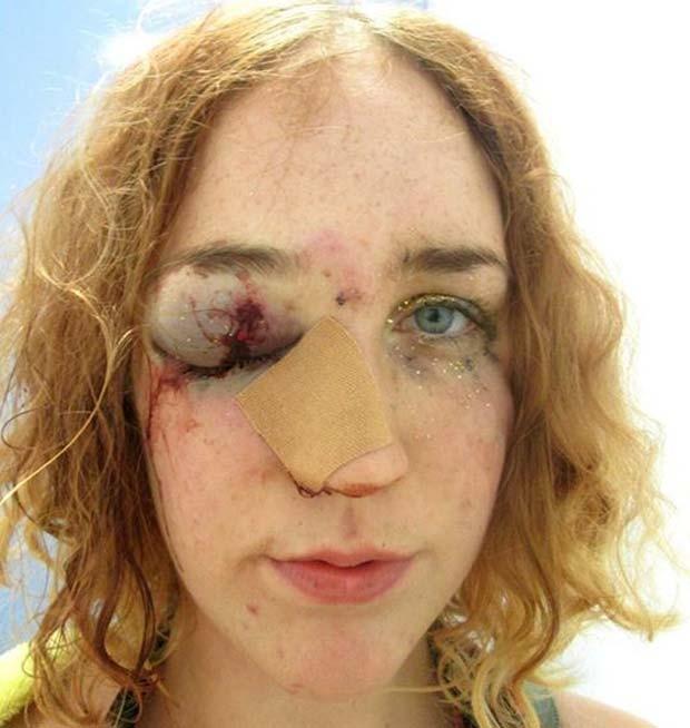 Mary Brandon postou foto em que aparece com o rosto machucado, após agressão que diz ter sofrido no carnaval de Notting Hill (Foto: Reprodução/Facebook/Maria del Mar)