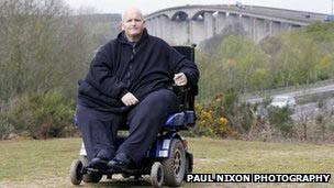 Britânico Paul Mason, que já pesou 444 quilos e está com 152 (Foto: Paul Nixon Photography)