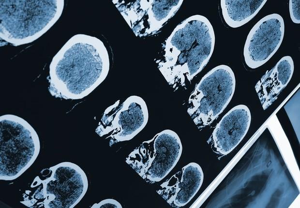Demência ; cérebro ; doenças degenerativas ;  (Foto: Getty Images)