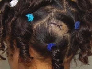 Criança sofreu ferimento na cabeça (Foto: Reprodução TV Tapajós)