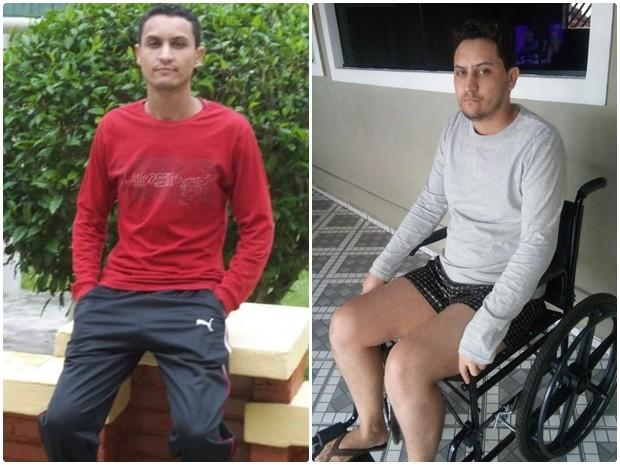 Edson antes e depois da doença incurável (Foto: Arquivo Pessoal/ Edson Sales)