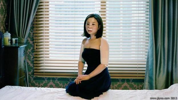 Cirurgia plástica é prática comum na Coreia do Sul, mas procedimentos mal-sucedidos têm feito várias vítimas  (Foto: BBC)