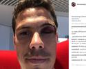 """Com corte no supercílio e lesão no tornozelo, Hernanes mostra marcas de """"batalha"""""""