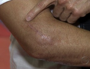 Cirurgia Newton Cachorrão MMA (Foto: Reprodução/TV Sergipe)