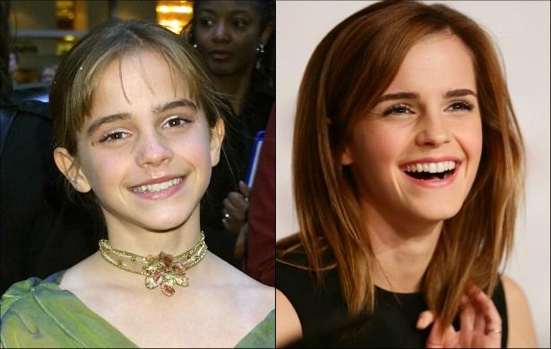 Emma Watson sempre teve um sorriso cativante, desde os tempos em que era a Hermione da série cinematográfica 'Harry Potter'. Porém, dá para notar que ela clareou e realinhou os dentes. O resultado ficou bacana. (Foto: Getty Images)