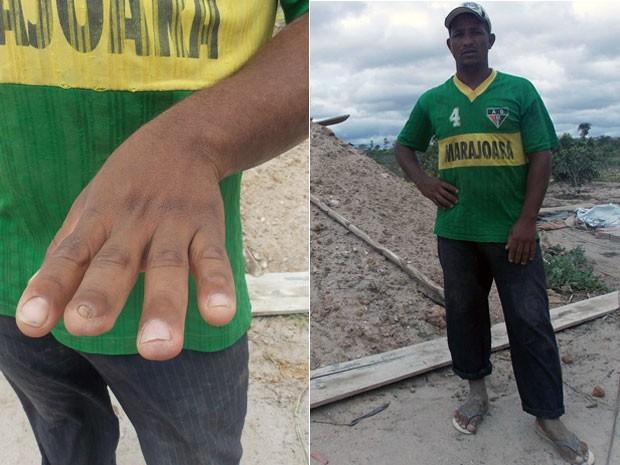 Edson Oliveira, trabalhador rural de 26 anos (Foto: Henrique Mendes / G1)