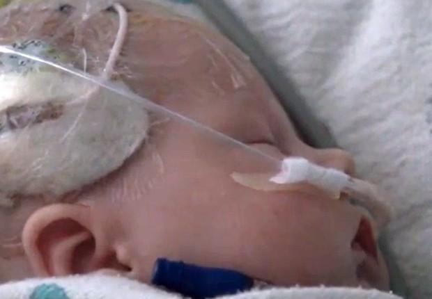 Criança recém-nascida de três semanas que foi salva de aneurisma (Foto: Divulgação/Hospital da Universidade do Kansas)