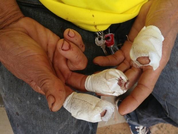 Homem acertou cabeça, mãos e dedos do vendedor Ginaldo Santos, de 65 anos (Foto: Valéria Oliveira/ G1)
