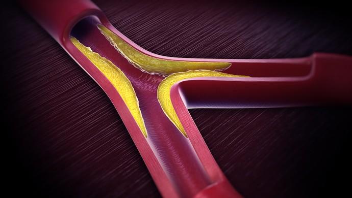 Aterosclerose artéria euatleta (Foto: Getty Images)