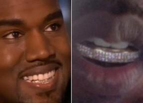 Kanye West  - Grillz (Foto: Instagram / Reprodução)