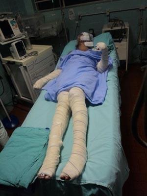 Jovem tem 80% do corpo queimado por companheiro em Vacaria (Foto: Divulgação/Polícia Civil)