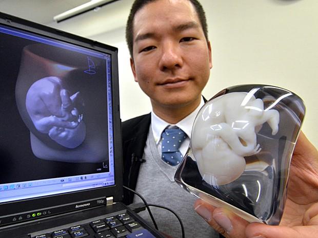 Molde feto (Foto: Yoshikazu Tsuno/AFP )